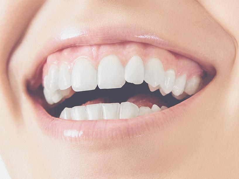 sonrisa gingival tratamiento